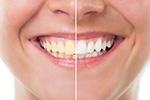 Top 5 Benefits of Teeth <br>Whitening