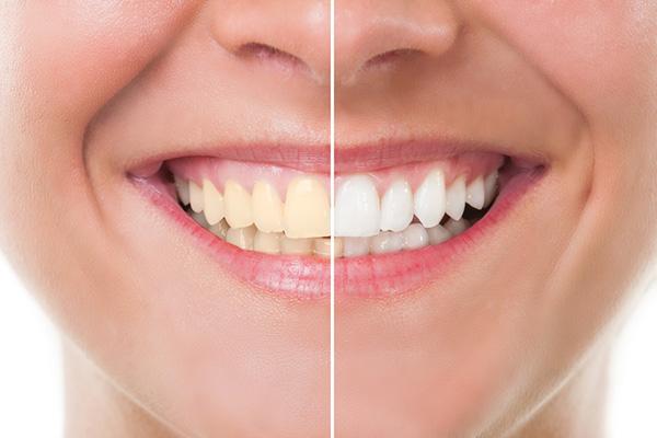 Top 5 Benefits of Teeth Whitening