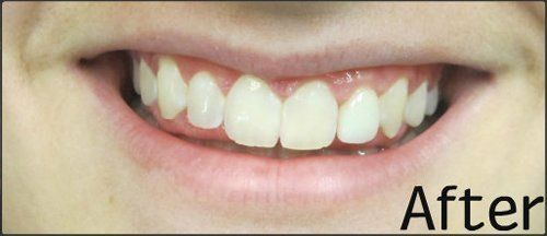 After invisalign and whitening