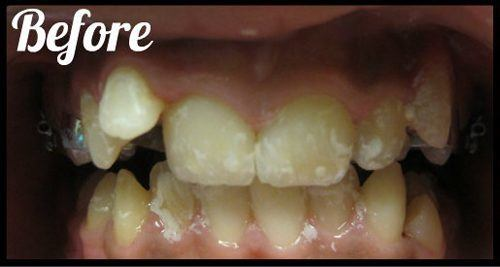 Before 2 phases of orthodontic treatment