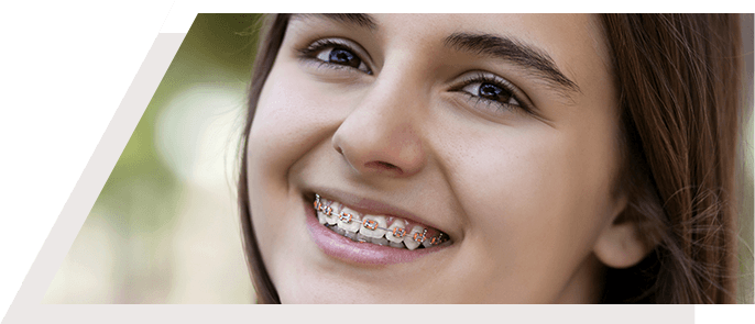 Exceptional General Dentistry in Lewis